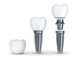 Diagram of dental implant, abutment and crown used by Williston Park dentist at Long Island Smile.