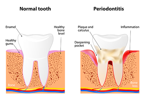 Normal tooth and Tooth with periodontitis diagram used by Williston Park, NY dentist at Long Island Smile.